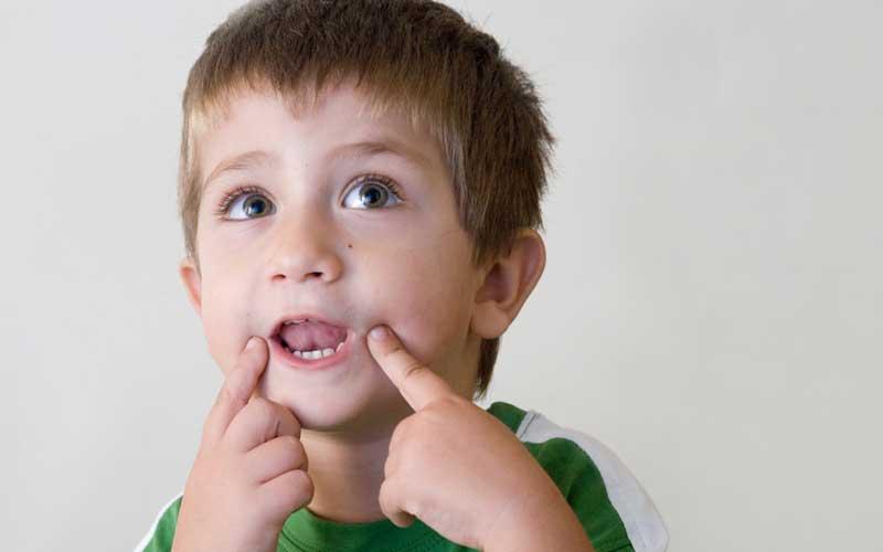 درمان لکنت زبان ناگهانی در کودکان