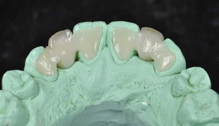 معایب-پروتز-دندان