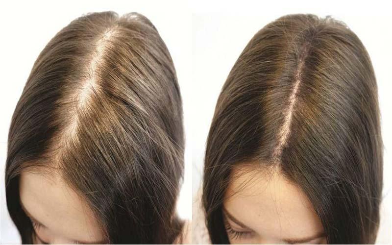 جلوگیری از نازک شدن مو