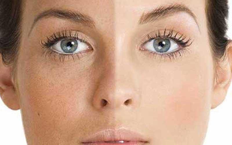 لایه برداری پوست صورت با مواد شیمیایی