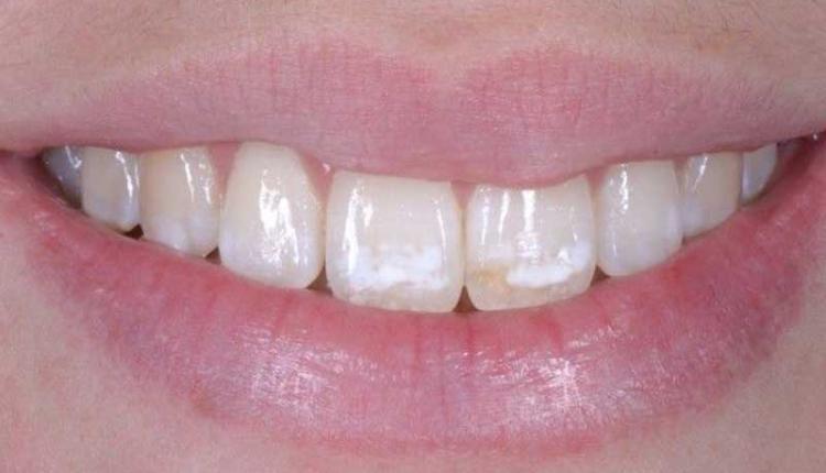 عکس لکه سفید روی دندان