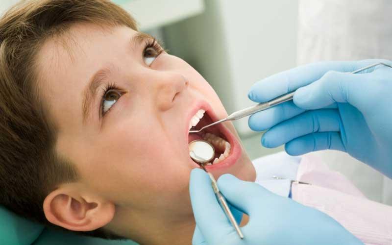 فلوراید برای دندان