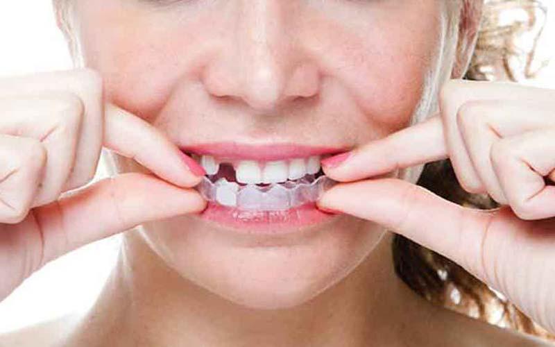 3 روش کاشت دندان بدون ایمپلنت +تصویر