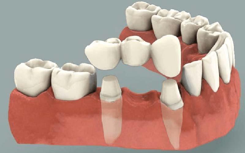 کاشت دندان بدون ایمپلنت