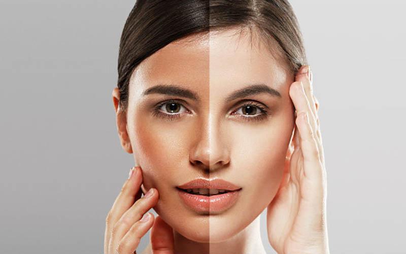 عکس سفید کردن پوست