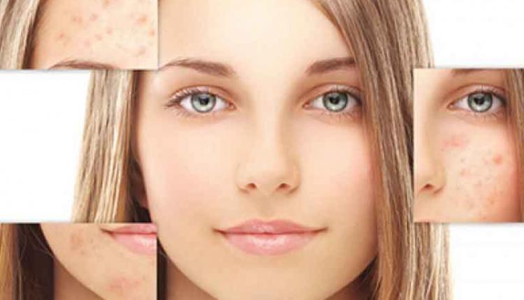 درمان سریع لک صورت