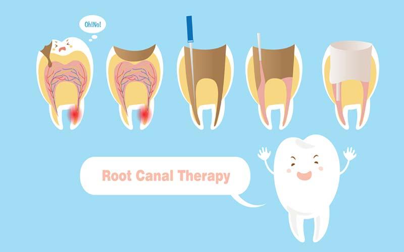بازسازی دندان خراب شده