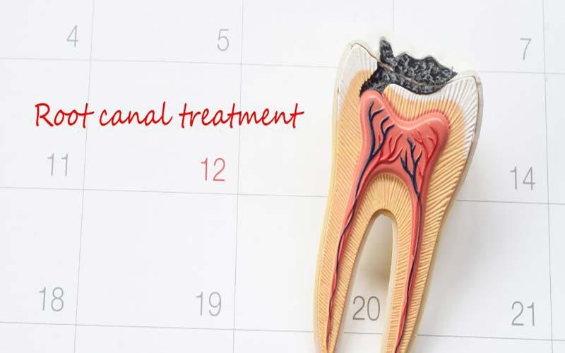 عفونی شدن دندان