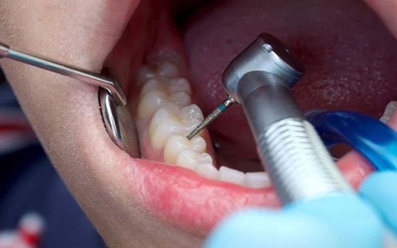 علت درد عصب کشی دندان