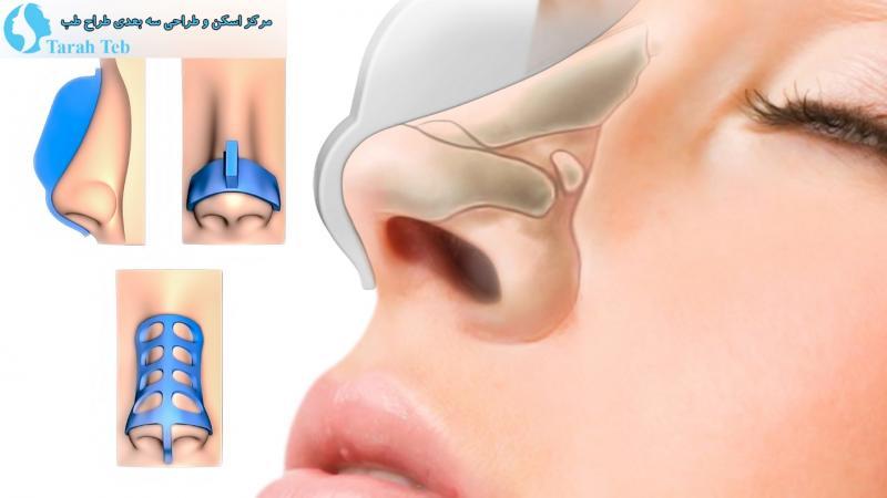 جراحی بینی با قالب بینی
