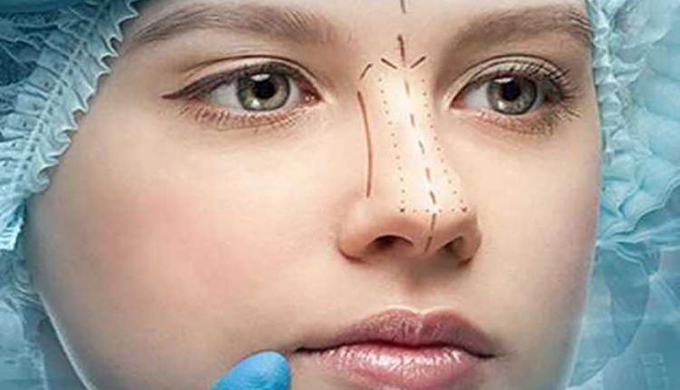 جراحی بینی به کمک قالب بینی