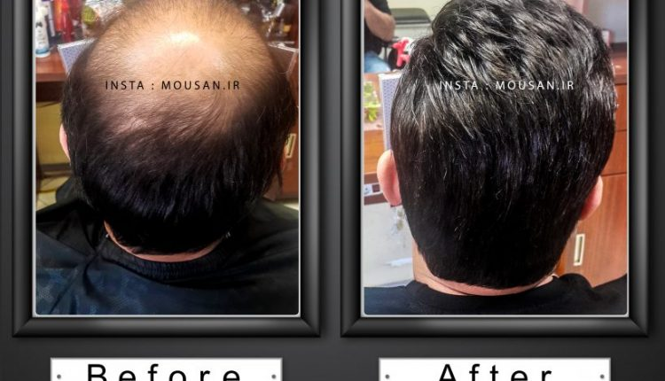 سیستم ترمیم مو