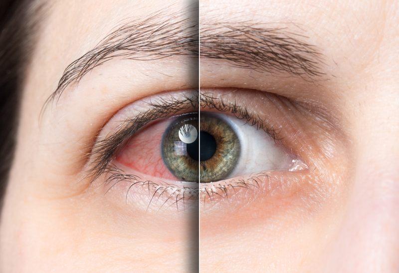 درمان قرمزی چشم