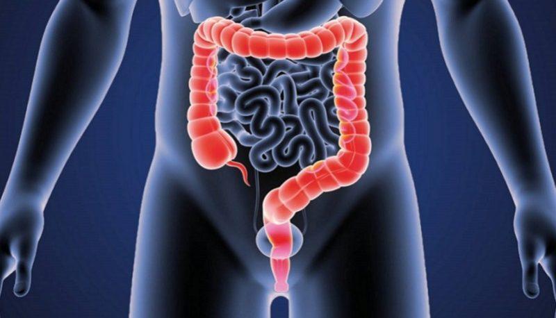 سرطان روده بزرگ آیا کشنده است؟