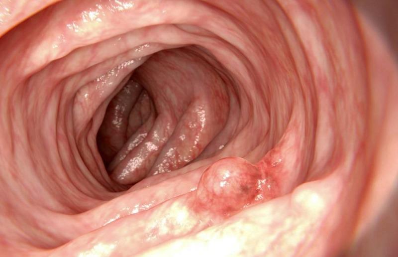 کولونوسکپی سرطان روده بزرگ
