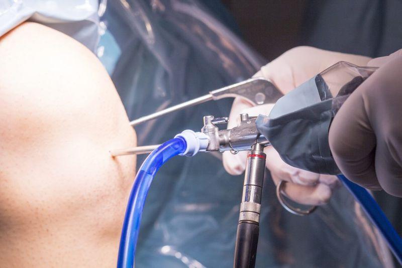 جراحی غضروف زانو با ارتروسکوپی