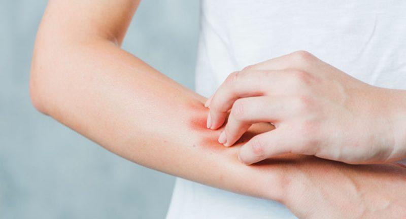 عفونت قارچی روی پوست