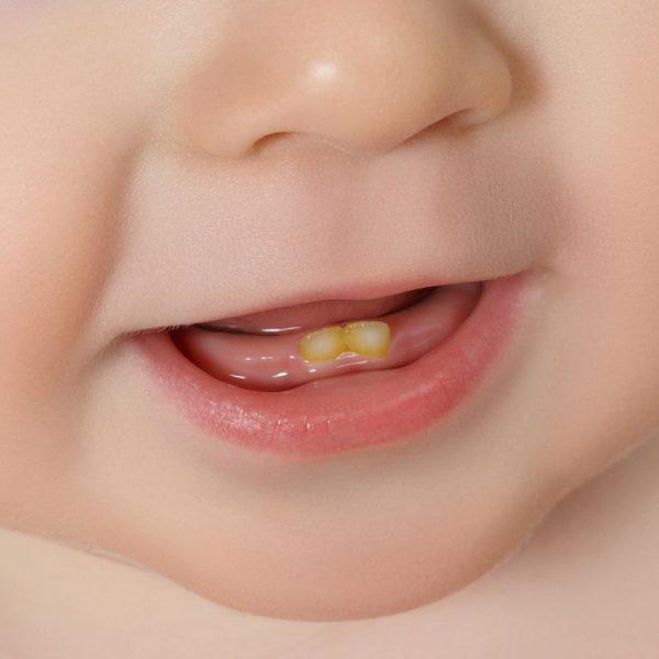 لکه دار شدن دندان