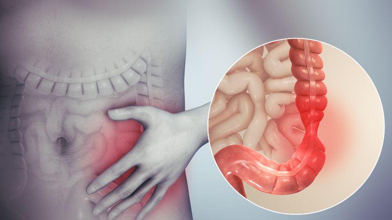 سندروم روده تحریک پذیر