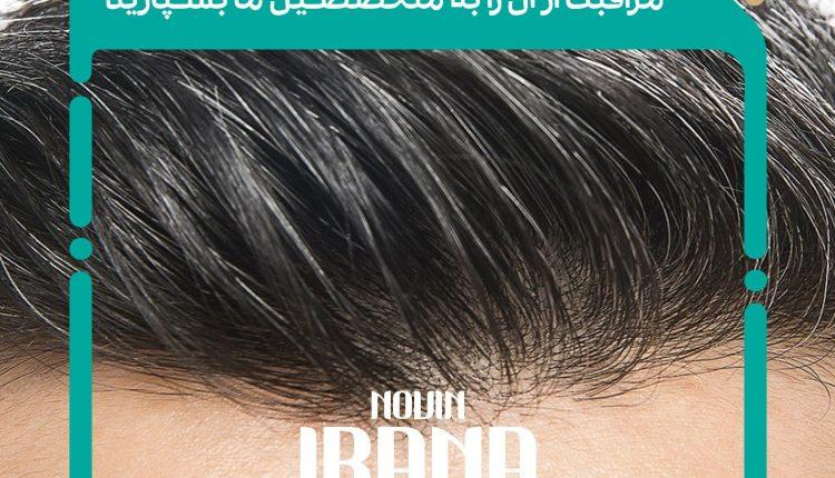 زراعة الشعر - کاشت مو - شفط الدهون