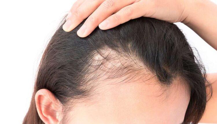 آیا فیناستراید داروی مناسبی برای درمان ریزش مو است؟