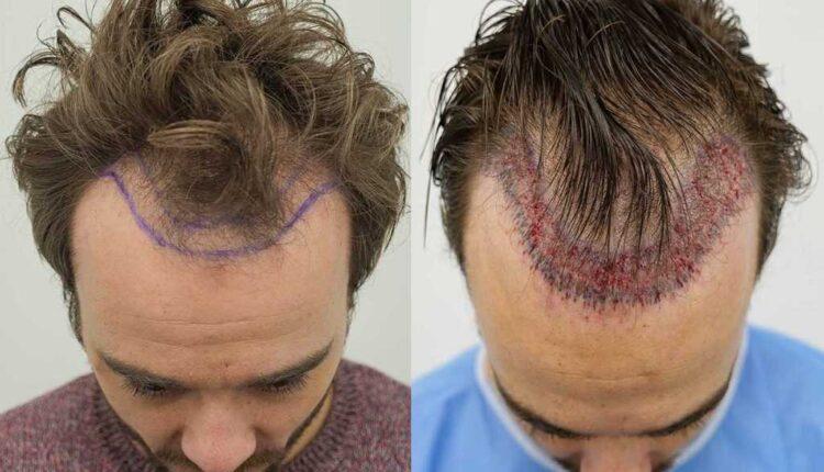 نتیجه کاشت مو پس از سه ماه