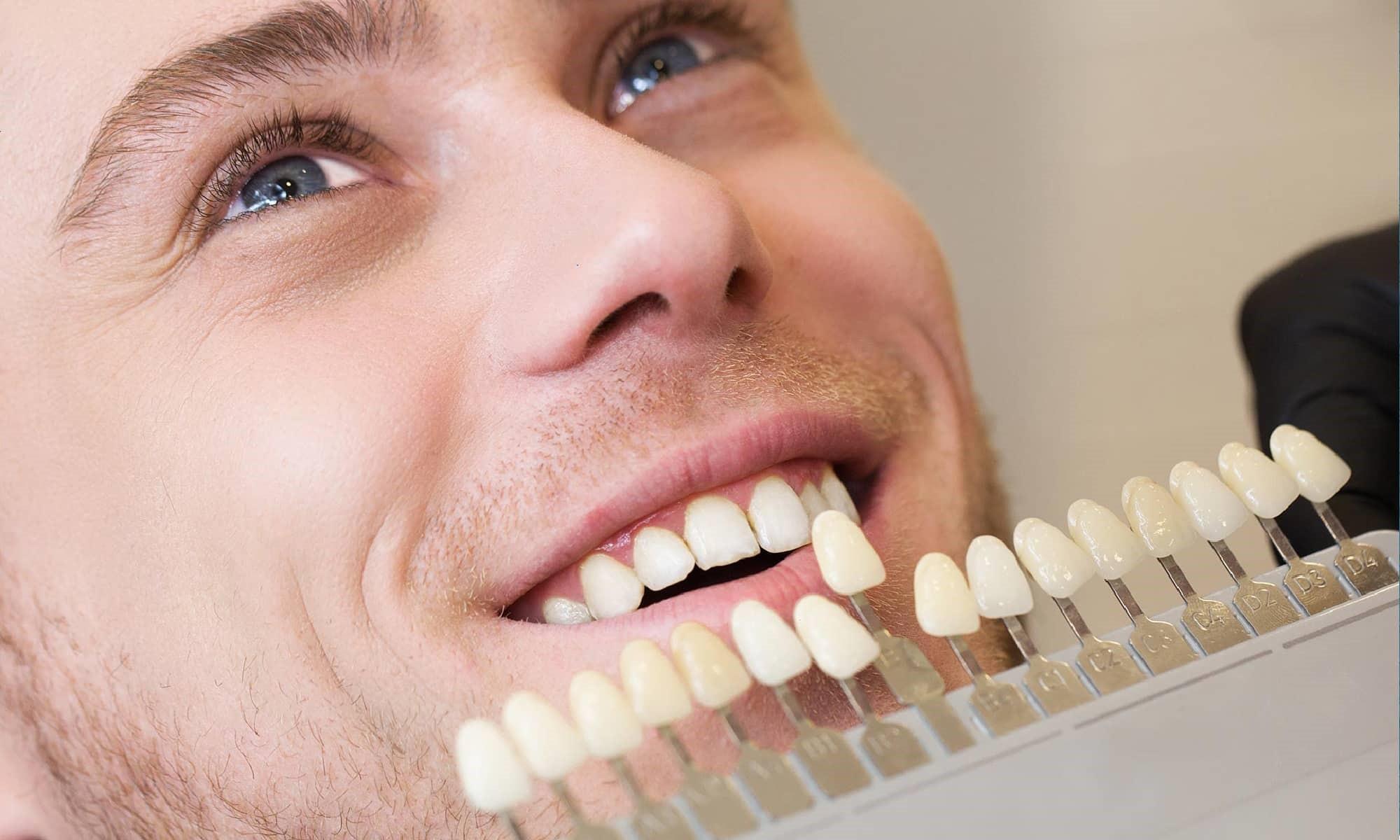 هزینه لمینت دندان چقدر است؟ مقایسه قیمت لمینت و قیمت کامپوزیت دندان