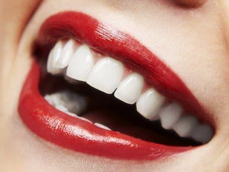 انتخاب بهترین متخصص کامپوزیت دندان در تهران